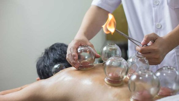 Traditional Fire Cupping